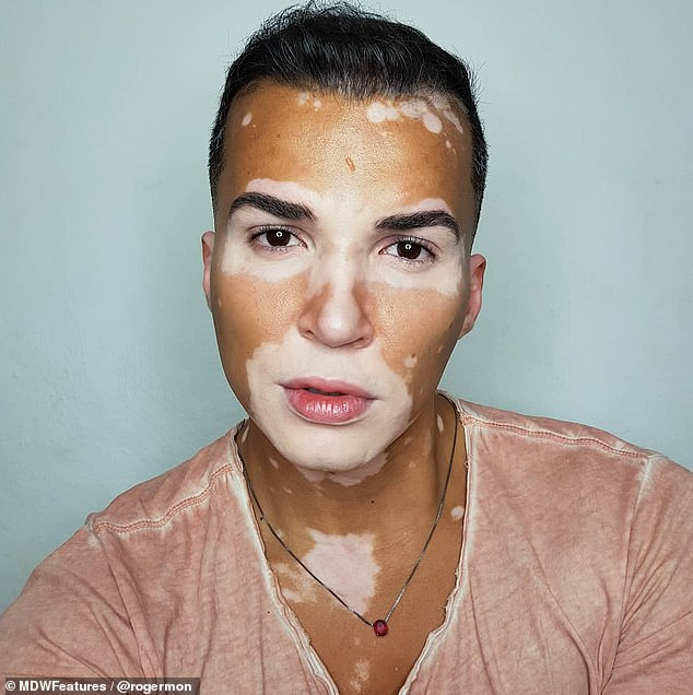 Model, 37, with rare skin condition vitiligo says strangers thought condition was contagious